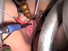 urethra
